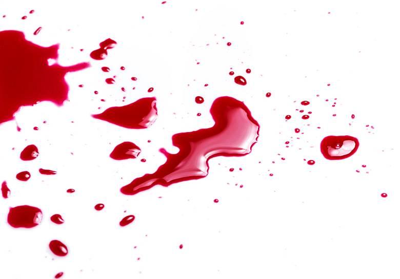 Как отстирать кровь с простыни